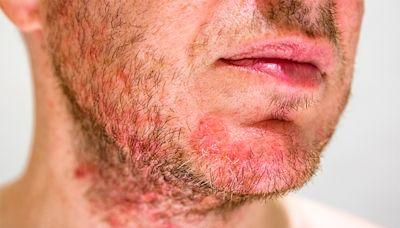 認識毛囊炎的成因與治療 頭瘡與暗瘡有何分別?