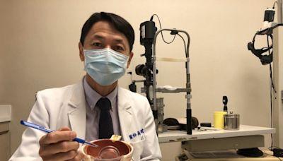 人工水晶體怎麼選? 醫:從生活習慣、費用作考量 - 銀髮天地 - 自由健康網