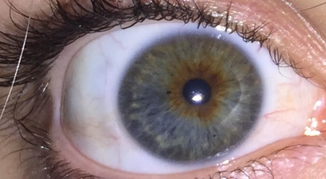 What color is my eye?