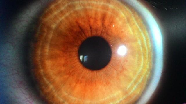 Alguém mais tem uma cor de olho parecida com a minha? Sabe que cor é essa exatamente?
