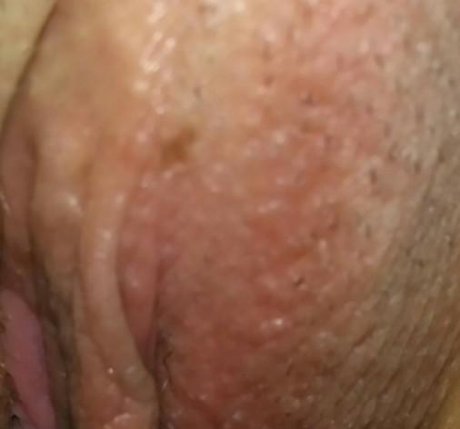 ¿Buenas alguien me puede decir que es esa mancha en la vulva de una mujer?