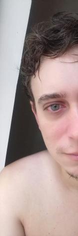 Qual a cor desse olho?