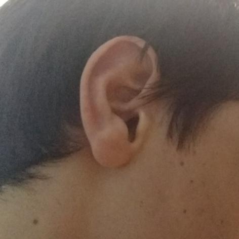 Tenho orelha grande???