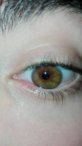 ¿De que color es este ojo?