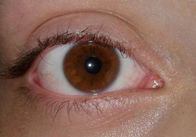 ¿Que son esos anillos amarillos que rodean el color de mi ojo?