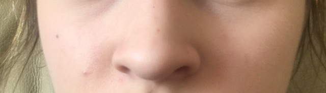Is my nose wide, should I get surgery?