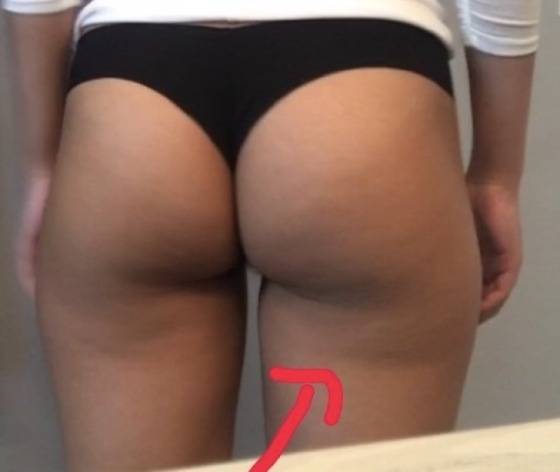 How to get rid of banana rolls under bum?
