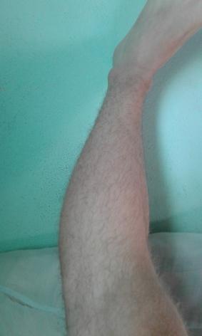Galera eu tinha bastante pelo na perna e não quiz depilar aí passei a maquina de cabelo N7 fico bom ?