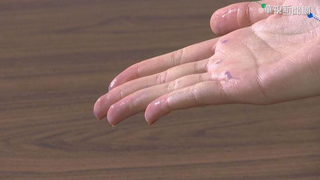 防範武漢肺炎 專家:勤洗手更重要!