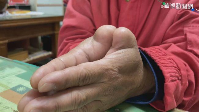 關節多1cm 雙手大拇指遭截肢「非身障」