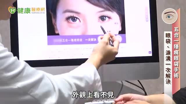 有眼袋=老十歲! 五合一隱痕眼袋手術助你回復青春亮眼