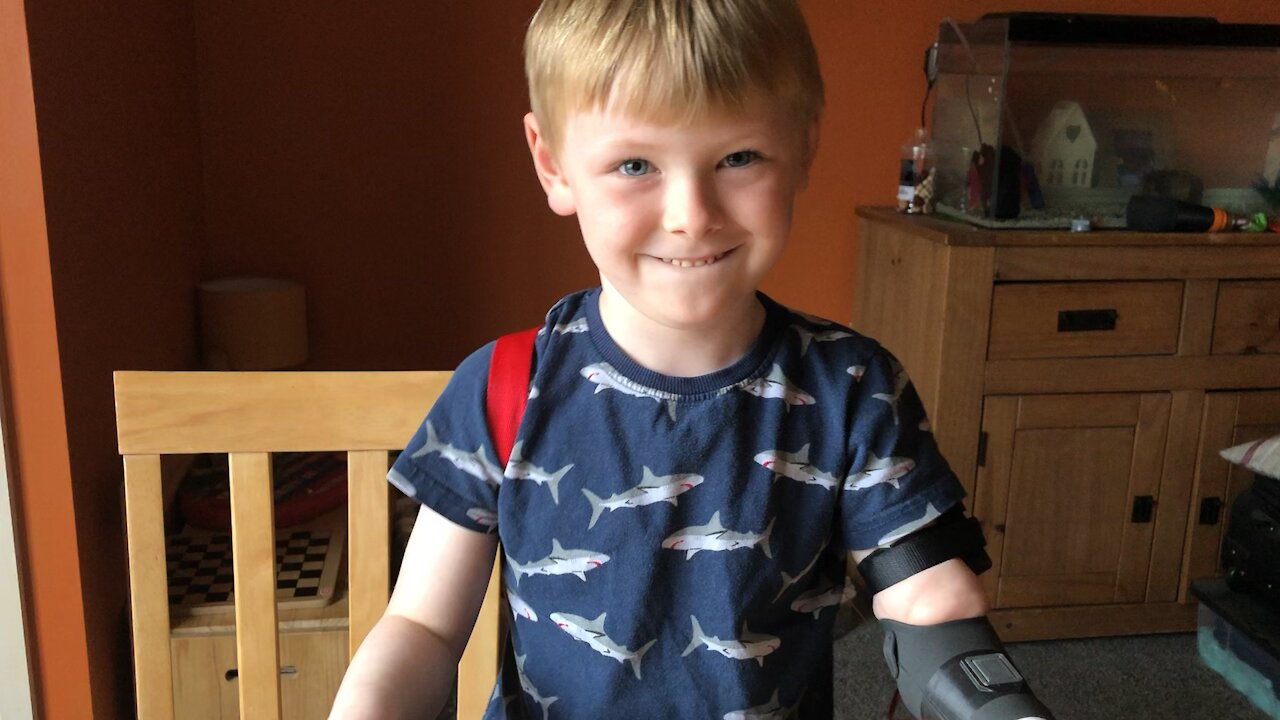 Kid tests out new 3D printed robot arm