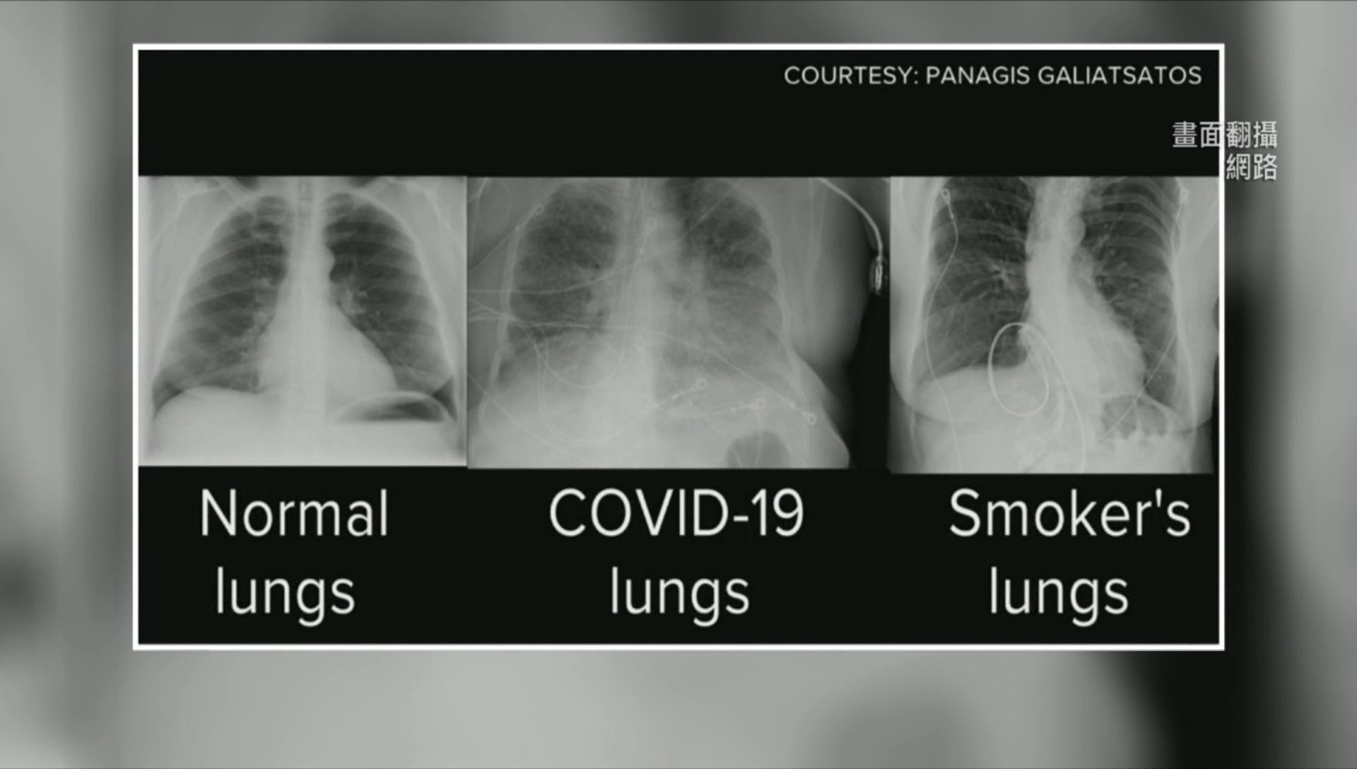 染疫7步倒地! 隱形缺氧非唯一 「肺栓塞」更致命