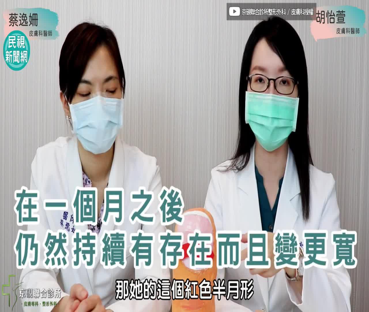 影/武漢肺炎新病徵?醫師:注意指甲3症狀