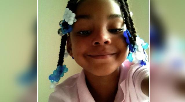 American girl, 8, dies months after drinking boiling water on a dare