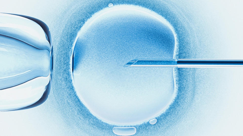DNA test reveals fertility doctor's dark secret, lawsuit alleges