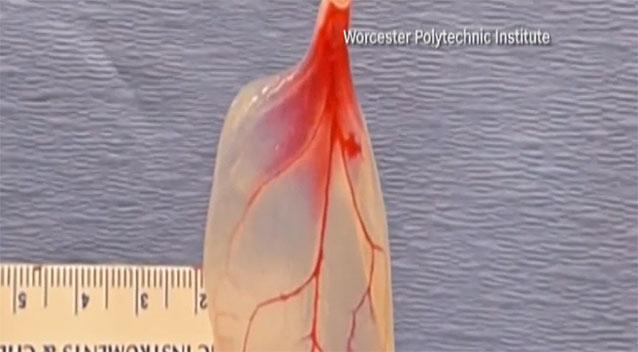 MA scientists turn spinach leaves into human heart tissue