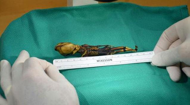 Ata the 'alien' found to be human baby with deformities
