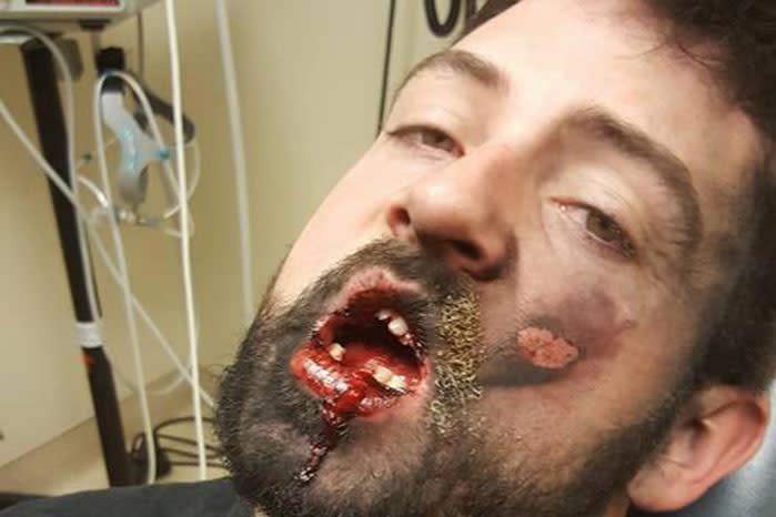 Vaper loses 'seven teeth' after horrific e-cig explosion