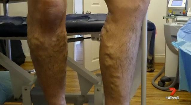 Standing Desks Have Lead To Rise In Numbers Of Varicose Veins Doctors Say Source 7 News