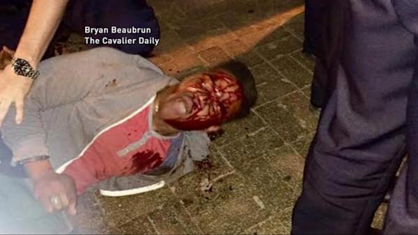 Charges Dropped Against UVA College Student Allegedly Beaten