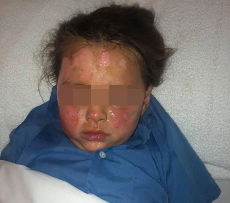 A mum has warned people lighting up campfires to check the area before lighting up after a gas canister hidden under wood exploded burning her six-year-old daughter. Source: Facebook