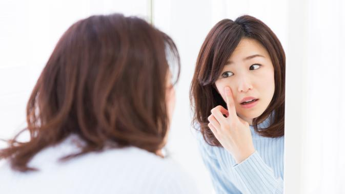 Ilustrasi Cystic acne/copyright shutterstock