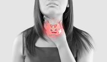 【香港浸會大學中醫藥學院專欄】中醫談「鼻咽癌」 (二)