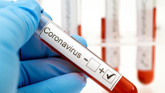 Cerita Pilu Pasien Positif yang Satu Keluarga Terinfeksi Covid-19