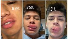 嘴唇被蜂螫 他拍「3小時腫大過程」吸千萬人搶看