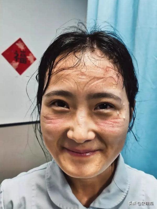 6 Potret Wajah Suster Rawat Pasien Virus Corona Ini Bikin Haru (Sumber: Asiaone)