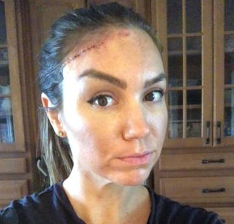 Keri Noble with a scar in her forehead after she had a basal cell carcinoma removed which is a form of skin cancer. She believes she got the cancerous cells from sun exposure and tanning beds.