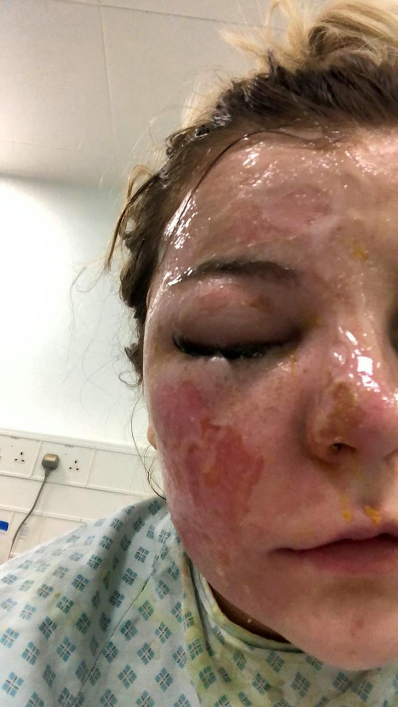Bethany Rosser in hospital after the accident with burns to her face.