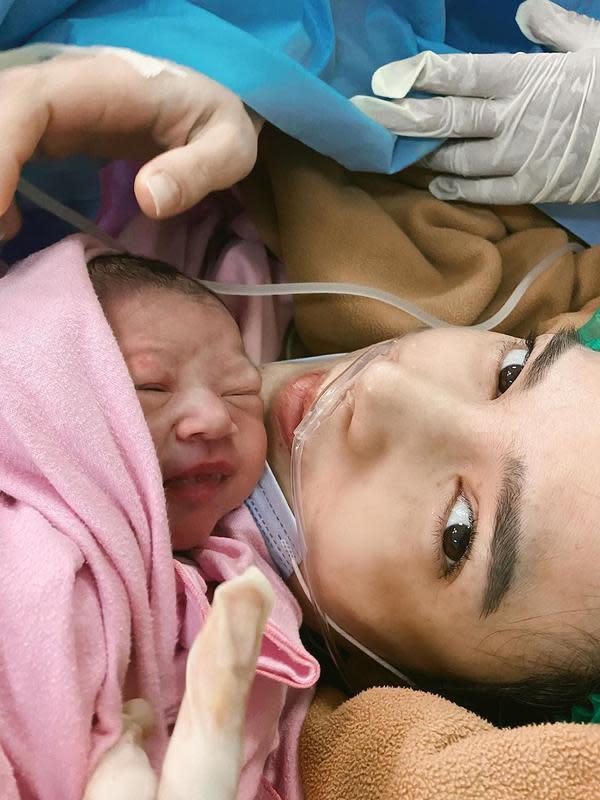 Pemeran dalam film itu membagikan foto setelah melahirkan anak keduanya. Bayi perempuan dengan mata masih merem dan di hidung Alice masih menempel selang. (Instagram/alicenorin)