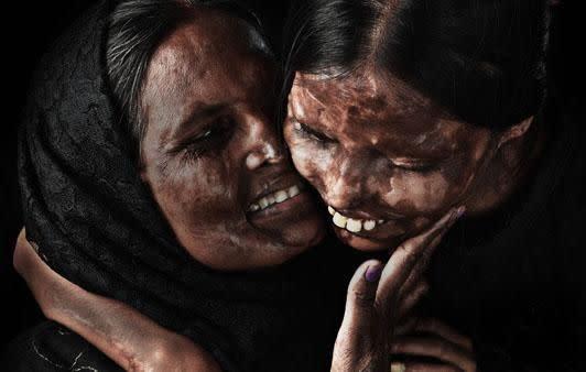 The inspiring women who have found a reason to smile despite their heartbreaking situations. Photo: Niraj Gera.