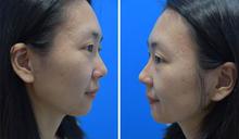 真‧皮秒雷射加蜂巢,客製化快速解決你的皮膚問題