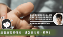 病毒疣復發難道是免疫力問題?醫師:從指紋判斷疣是否恢復