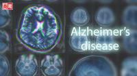 寫一篇文章,就能揪出你會不會得阿茲海默症!IBM這系統準確率七成