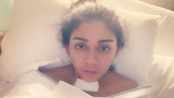 Potret Thalita Latief pasca operasi tumor tiroid. (Sumber: Instagram @thalitalatief)