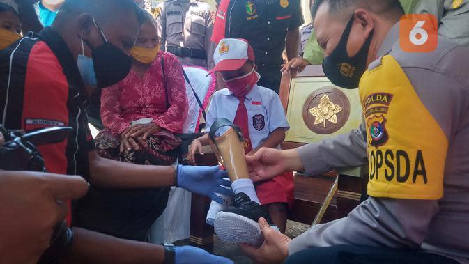 Momen Haru Kapolda NTT Pakaikan Kaki Palsu ke Bocah Difabel Yesi Ndun