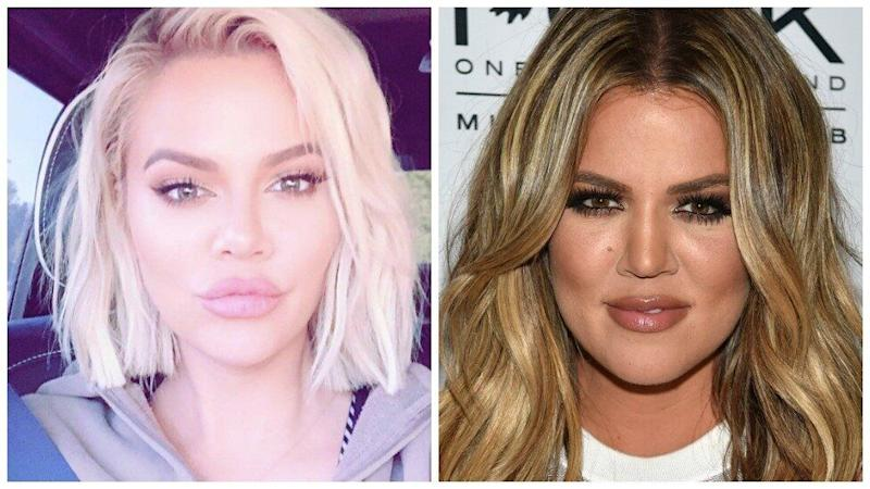 Fans have pointed out that more than just Khloe's style seems to have changed lately. Photo: Getty Images/ Instagram