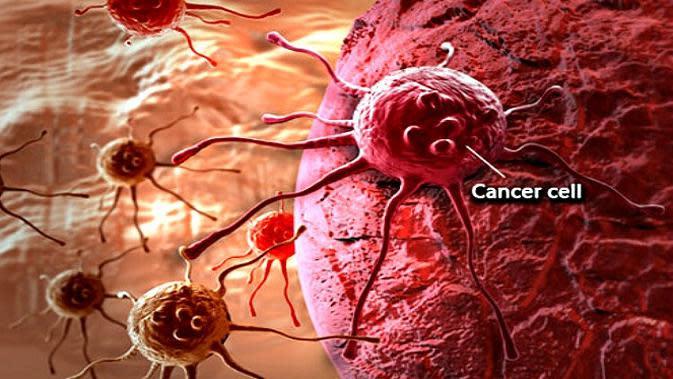 Ilustrasi sel kanker | OnHealth