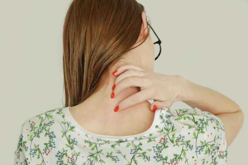 Some sufferers describe their eczema as debilitating [Photo: Getty]