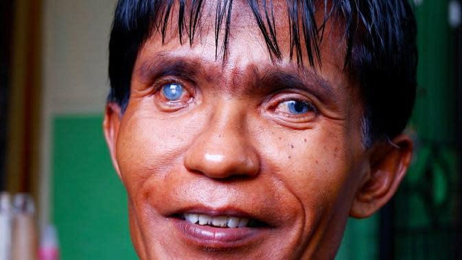 Ayah dari Dzakira Azizy Naqiya yang juga punya mata biru. (Liputan6.com/M Syukur)