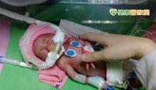早產兒出生體重僅一杯手搖飲 早產兒基金會愛傳東台灣