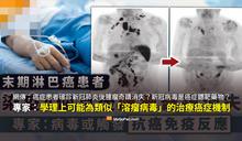 【查證】淋巴癌症患者確診新冠肺炎後,腫瘤奇蹟消失?專家解釋「溶瘤病毒」的機制