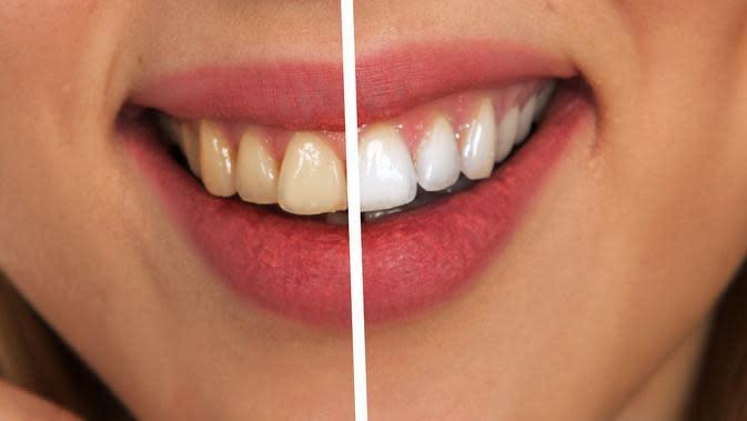 Ilustrasi gigi (sumber: Pixabay)