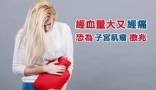 經血量大又經痛 恐為子宮肌瘤徵兆