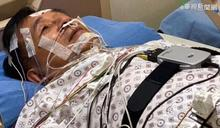 檢測睡眠呼吸中止症 陳水扁變電線人