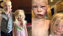 6歲男童勇護妹「與狗衝突縫90針」 美國隊長送上盾牌打氣